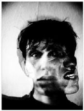 Paranoid Şizofreni'de Güz Sancısı